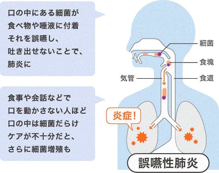 沈下性肺炎 肺炎
